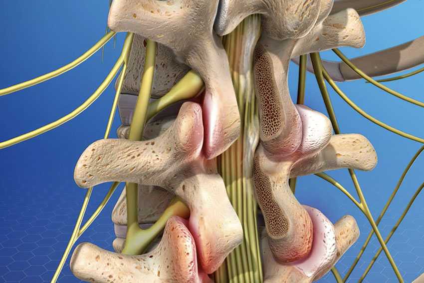 Spine Surgery in Pune