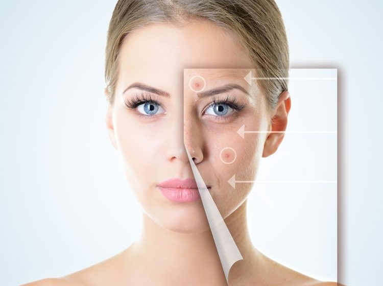Laser Treatment for Acne Scars In Pune
