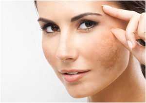 Get the best Melasma treatment at Earth & Ether Clinic