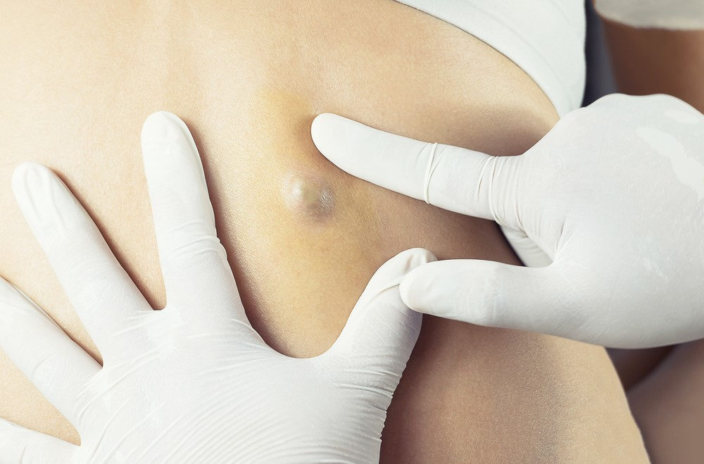 Sebaceous Cyst Removal